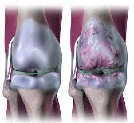 الفصال العظمي في الركبة