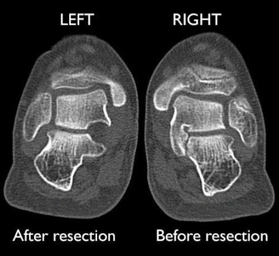 الأشعة السينية لاستئصال الفحم الرصغي