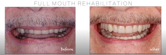 Biomimetic Full Mouth Rehabilitation