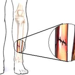 Diagram Of Tibia Stress Fracture Origami Jumping Frog Explosive Strength Training That Helps To Build Your Bones Dr Fractures