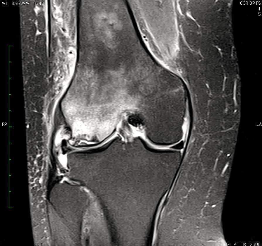 osteonecrose do joelho