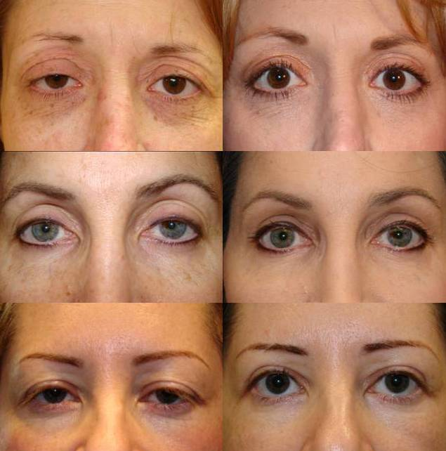 ptosis surgery or blepharoplasty surgery