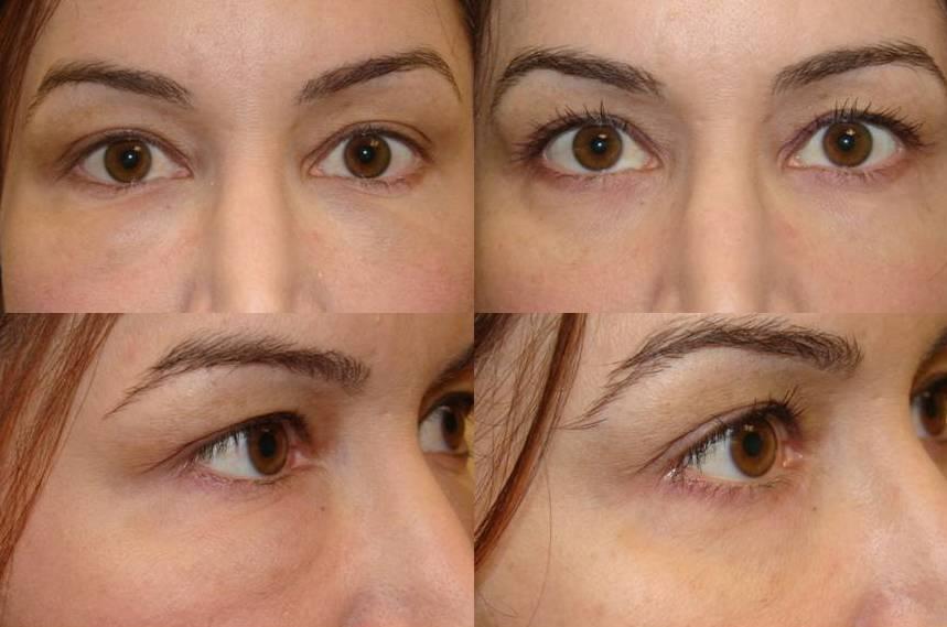 Swelling After Lower Eyelid Fillers (Juvederm, Restylane