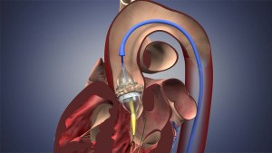 Avoid open chest operation for valve disease2