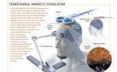 Tratamento com estimulação magnética transcraniana para dor, espasticidade e depressão.