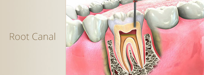 Root Canal - Dr. Tim Meskhi - Personal website of doctor of dental surgery in Central London