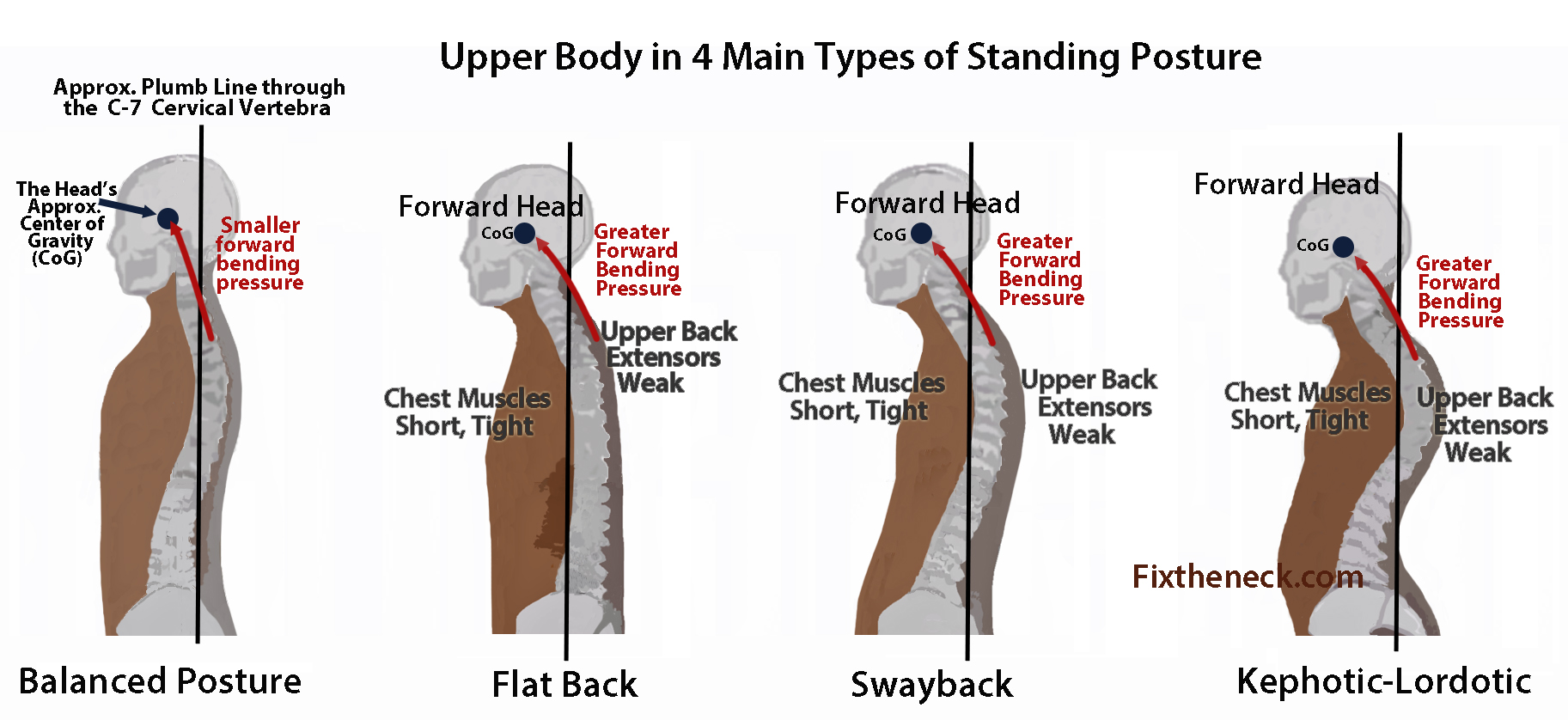 best office chairs for lower back pain chair covers classroom poor posture treatment - snyder chiropractic & wellness