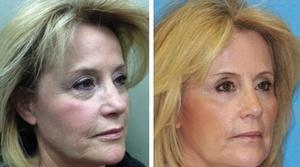 Laser Skin Treatment Gallery