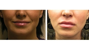 Love your Lips / Lip Augmentation Gallery