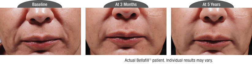 bellafill-smile-lines-before-after-nj