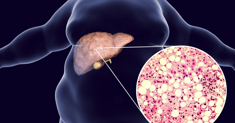 Billions of dollars are being spent to develop fatty liver drugs, but diet and lifestyle work better