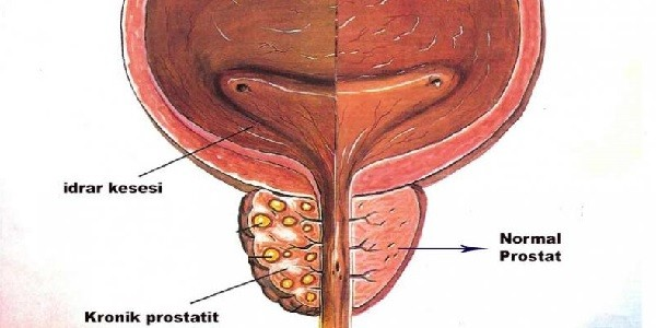 Prostatit-Nedir