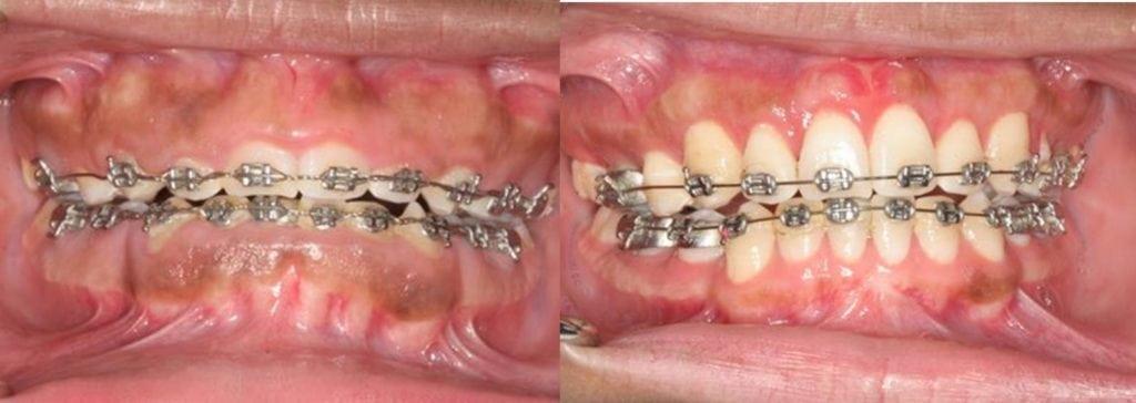 Smile Makeovers - Southfield Periodontist - Joseph R ...