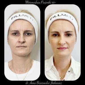 Metamorfoza pacjentki 40 +