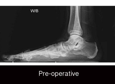 campitelli-flat foot fallen arch