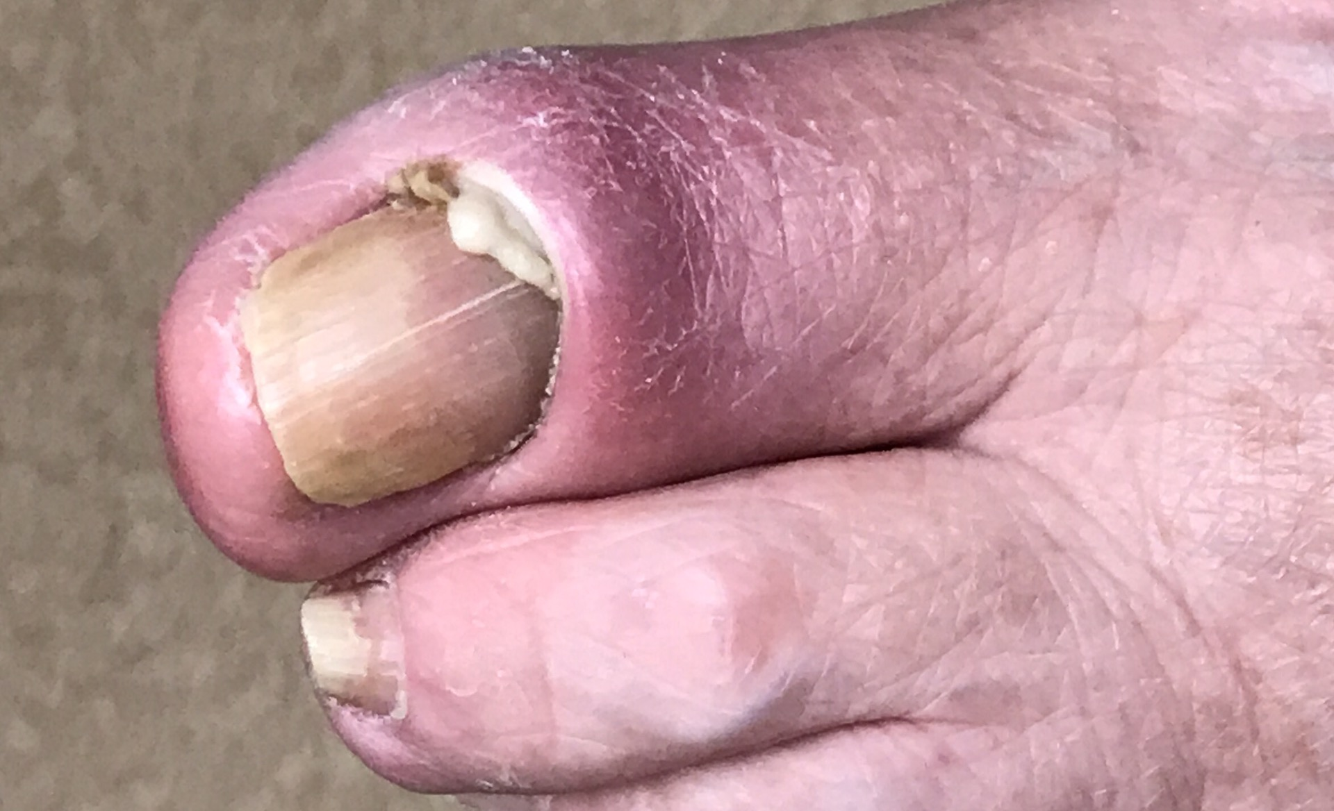 Infected toenail or nail fungus? - Dr. Nicholas Campitelli | Akron ...