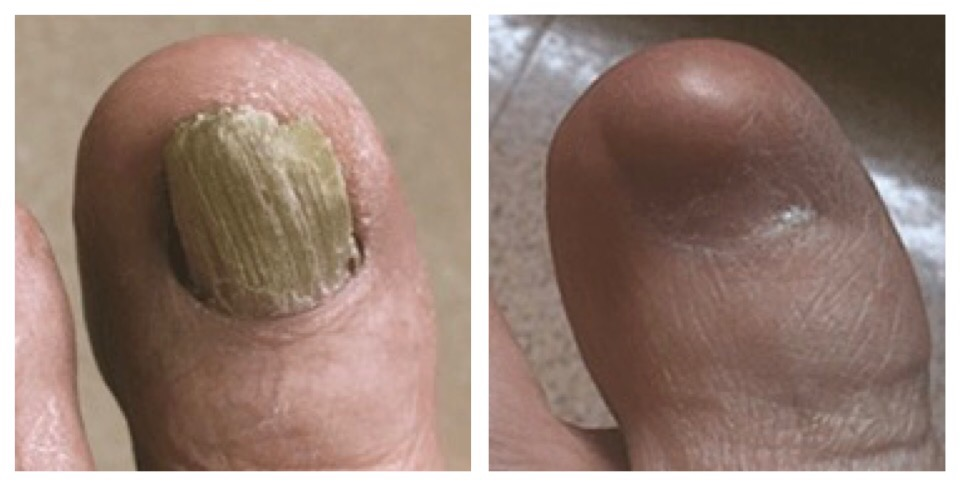 Surgical Removal of a Painful Toenail - Dr. Nicholas Campitelli