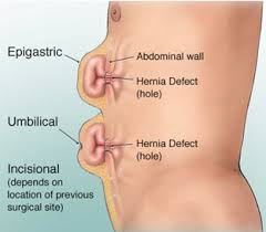 VENTRAL / UMBILICAL / INCISIONAL HERNIA treatment in noida