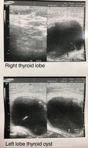 Case of left lobe thyroid cyst - Dr  Olga Habchi - Classical Homeopathy