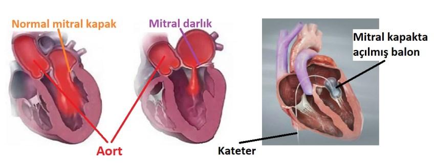 (Sonradan Gelişen) Edinsel Kalp Hastalığı Tedavisi
