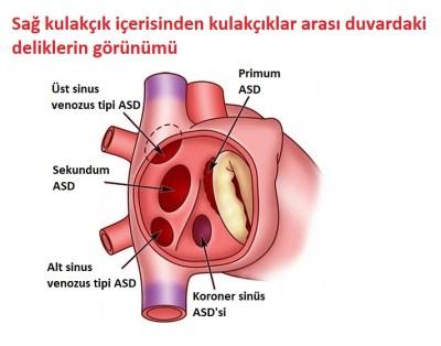 ASD Yakın Plan