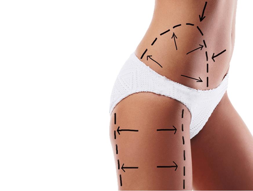 O procedimento de lipoaspiração deixa cicatriz?