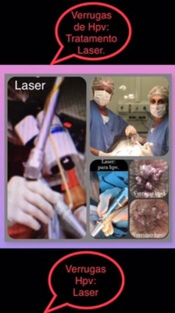 verrugas na pele perianal do homem bissexual tratadas com laser sem internação.