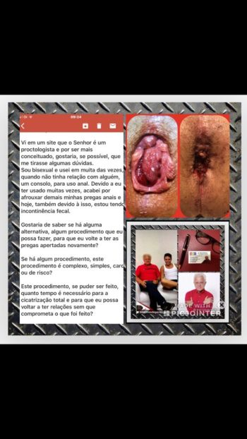 hemorroida interna de grau IV no homem bissexual.
