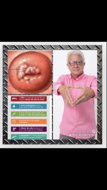 homem bissexual e o câncer do colo do útero.