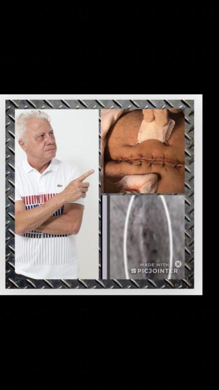 cirurgia fechada com laser para o tratamento do cisto pilonidal.