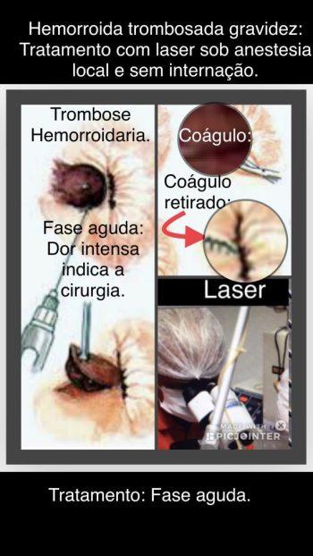 hemorroida trombosada tratamento com laser.