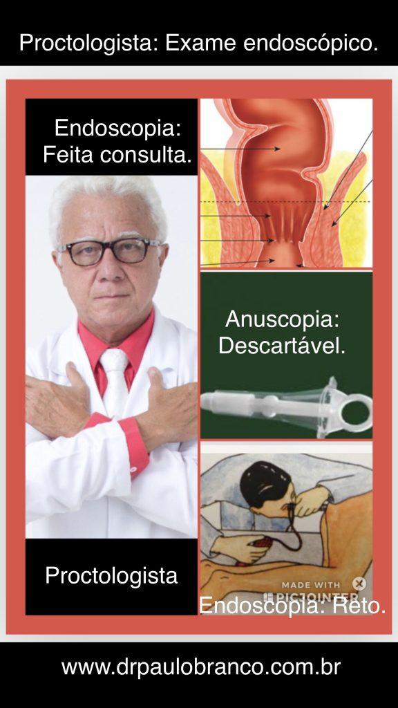 endoscopia anal