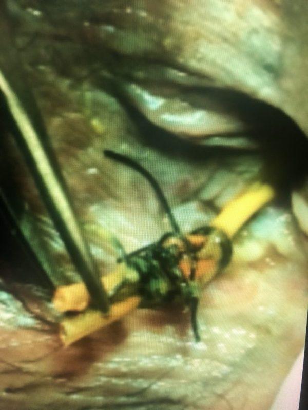 seton causa infecção