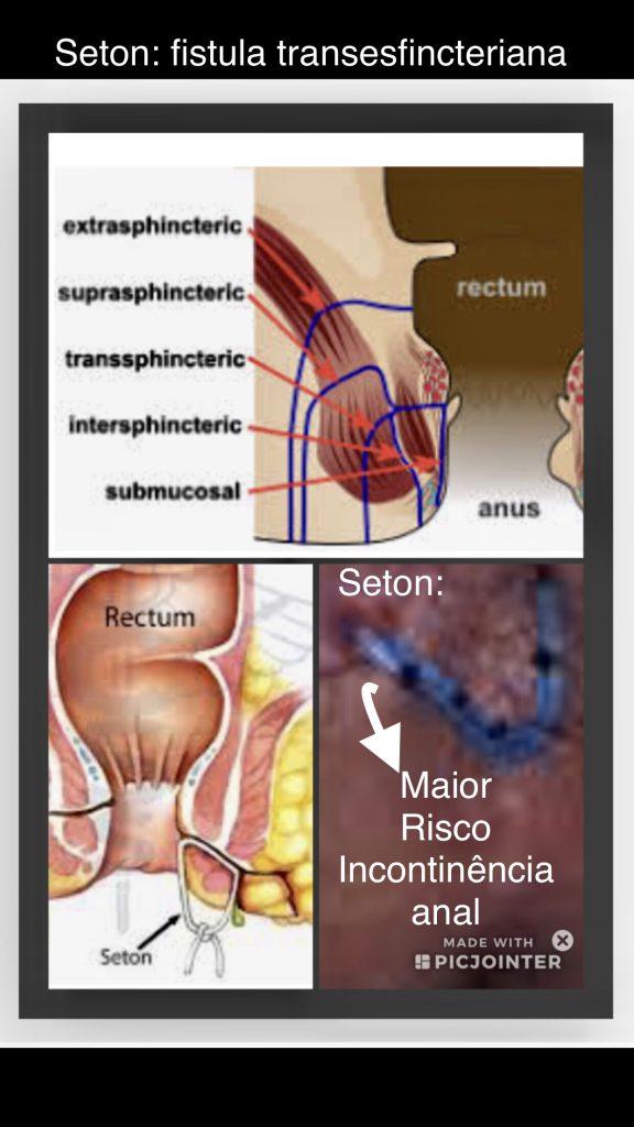 seton causa infecção anal