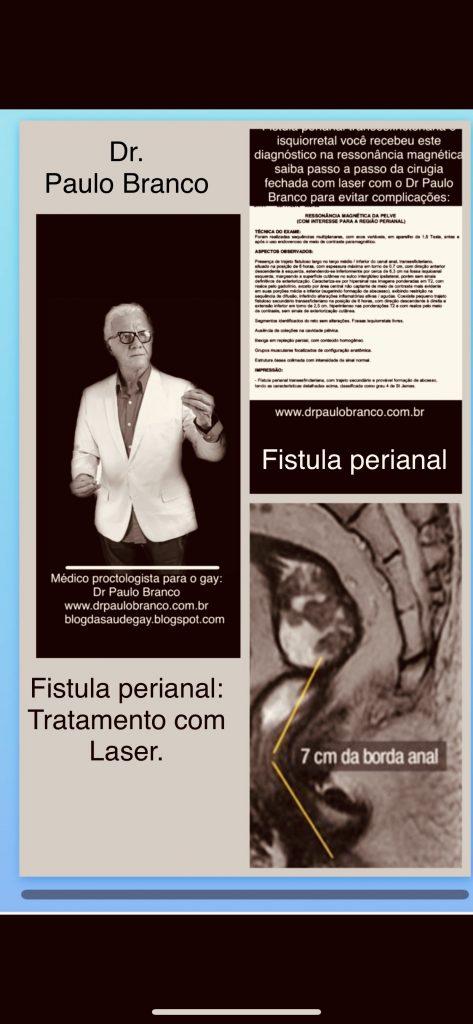 fistula perianal transesfincteriana e isquiorretal tratada com laser .