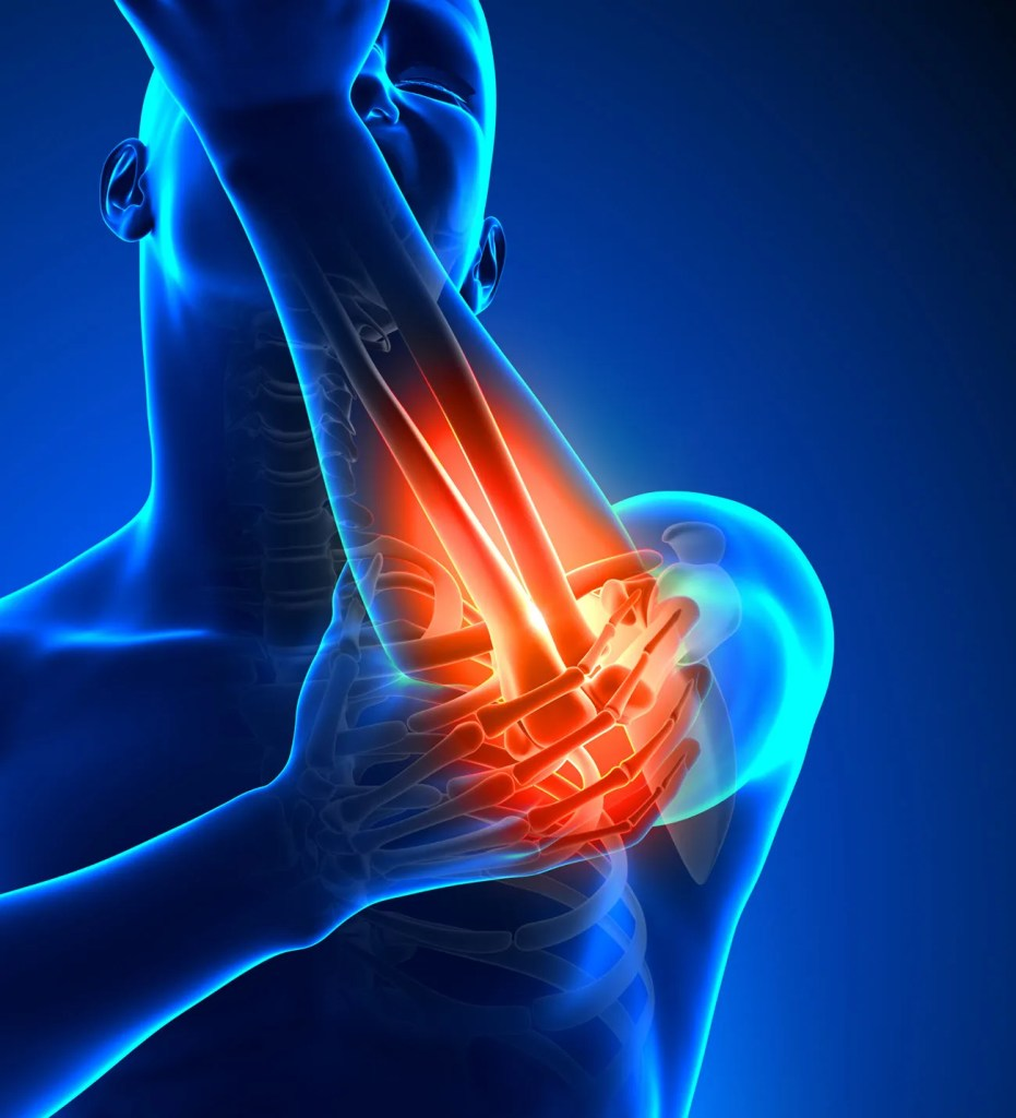 Tennis Elbow Wrist Pain Chiropractor
