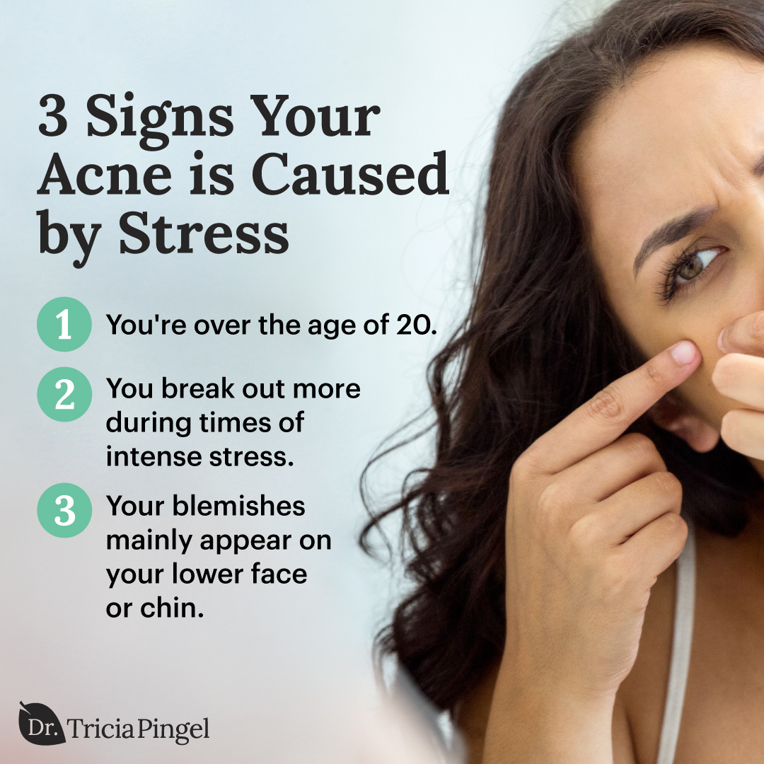 Acne caused by stress - Dr. Pingel