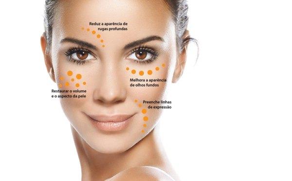 Preenchimentos faciais: quando usar cada tipo de substância?