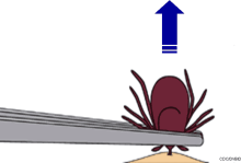 Tick Removal Display Image
