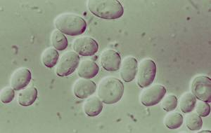 Yeast Cells