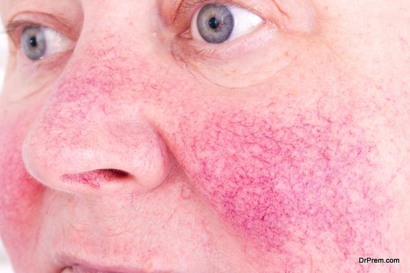 prevent-blushing