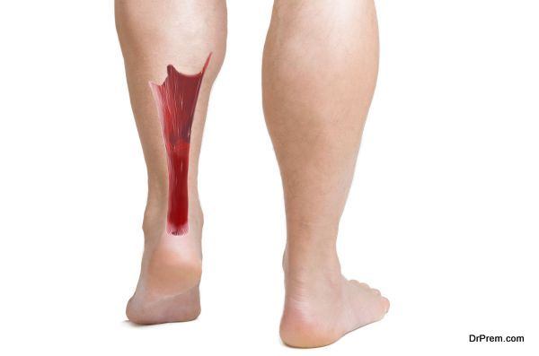 achilles tendon with lower leg muscles