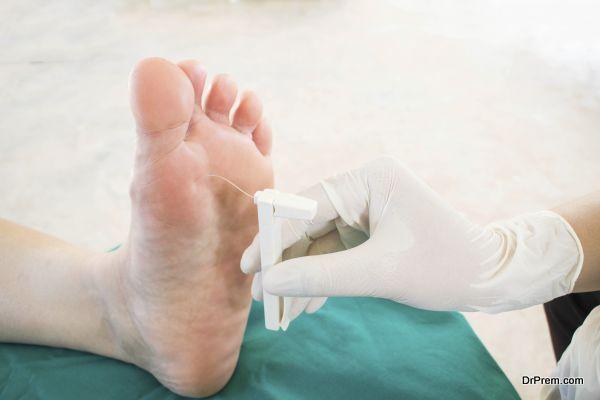 diabatic foot skining neuropathy