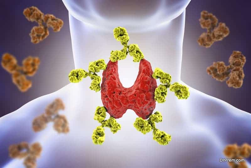 How to dissolve thyroid nodules naturally
