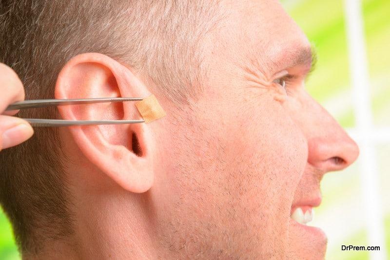 Ear seeding gaining popularity as a new wellness trend
