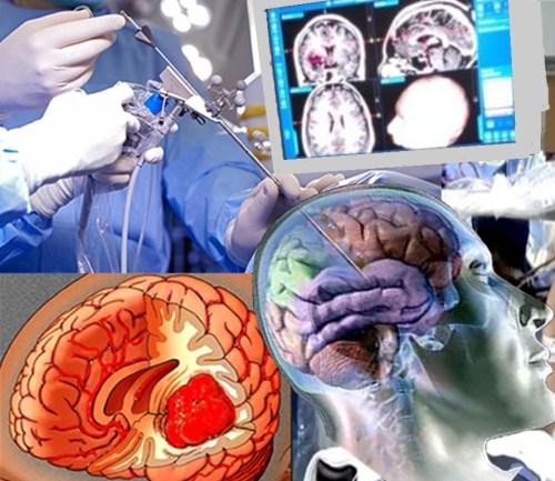 Neuroendoscopía