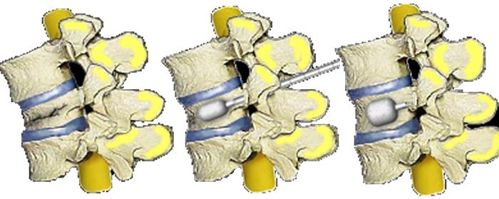 Vertebroplastía y Cifoplastía