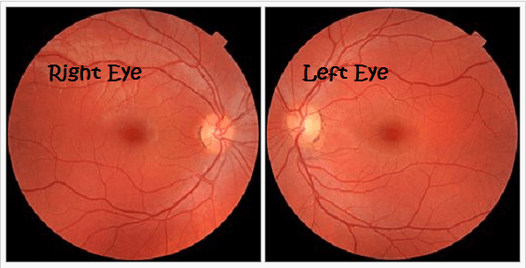 diagram of the left eye 24 volt battery wiring how to tell right from images questions about diabetes related retinopathy