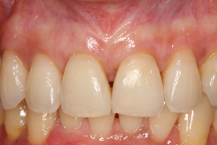 Esthetic Gingival Graft - After 2