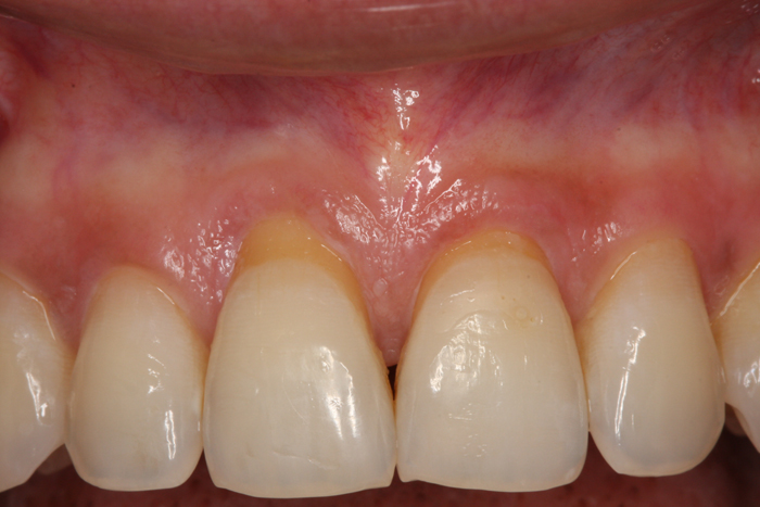 Esthetic Gingival Graft - Before 2
